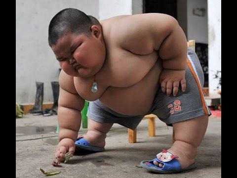 A világ legkövérebb gyerekének így lóg a bőre
