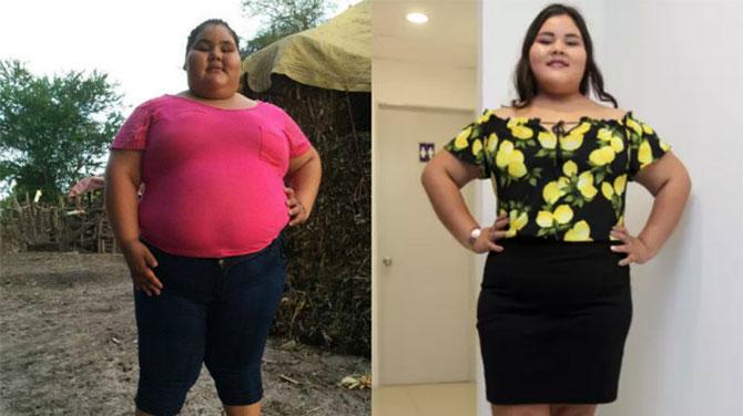 A világ legkövérebb kislánya